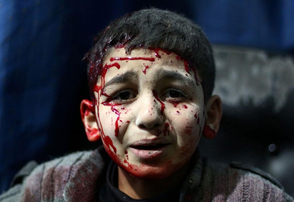 «Кровь и боль». Автор фото: Нермеш Сингх Гурдиб Сингх.