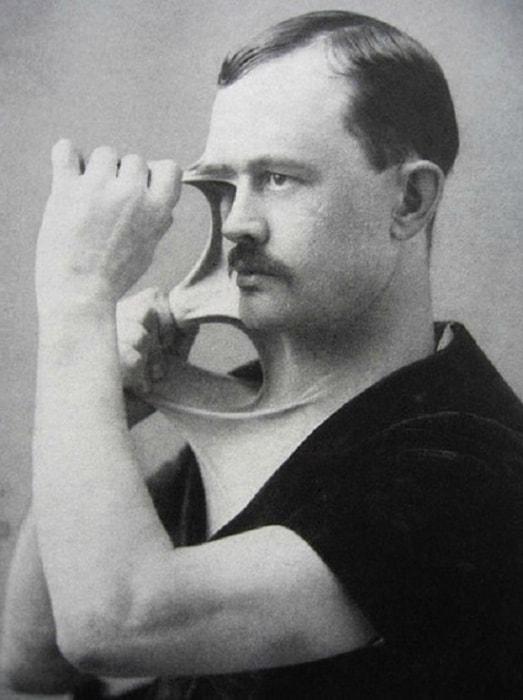 3. Мужчина с невероятно эластичной кожей, 1900-е годы