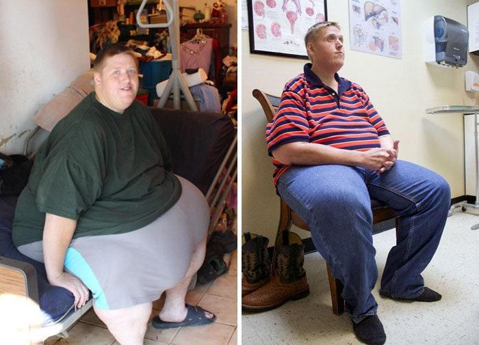 23. Джеймс весил 330 кг, а похудел до 159 кг